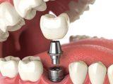 ایمپلنت دندان چیست + مزایا و معایب آن